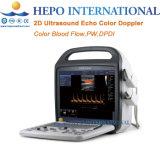 Portátil de alta definición del flujo de sangre el ultrasonido Doppler Color eco