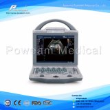 Handlaptop-Schwarz-weißer beweglicher Ultraschall-Scanner-Preis