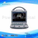 Prix portatif blanc de scanner d'ultrason de noir tenu dans la main d'ordinateur portatif