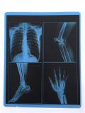 Amostra livre! ! Película de raio X azul médica