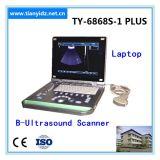 Explorador del ultrasonido de la computadora portátil del color de Ty-6868s-1plus