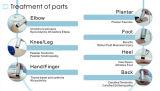 De Fysiotherapie Plantar Fasciitis van de Hulp van de Pijn van de Schokgolf van Extracorporeal van Swt2X