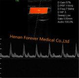4D COULEUR DOPPLER Elastrographie Trolley échographie Doppler Foetal USG