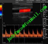 Сенсорный экран для эхокардиографии цветного доплеровского ультразвукового сканера