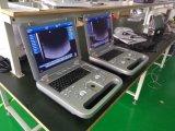 大きい販売の来ること! 3Dカラードップラー機能CfmかPwdまたはThi等Mslcu11の携帯用超音波のスキャンナーの価格
