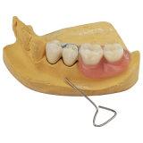 Акриловый полимер зубьев с вложениями