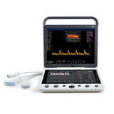 Superb eccellente Color Doppler 4D Portable Ultrasound Machine (MC-DU-S9)