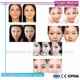 Microdermabrasión diamante 4 en 1 profunda limpieza de la piel del dispositivo de belleza