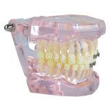 半分の金属および陶磁器ブラケットが付いている歯の歯科モデル