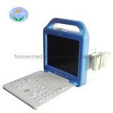 Scanner bianco di ultrasuono di ultrasuono degli strumenti medici del nero portatile della macchina
