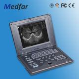 Ultrasuono portatile di Doppler di colore di Medfar MFC2018V