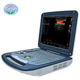 Instrument médical Doppler couleur Scanner ultrasons portable