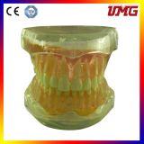 Les modèles de formation dentaire Standard amovible