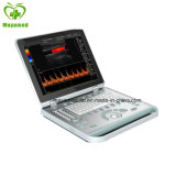 My-UM024 scanner de ultra-sonografia Doppler em cores do notebook