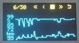 Oxímetro do pulso da ponta do dedo de OLED com loja dos dados e função da revisão