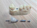 CAD 캠에 의하여 디자인되는 치과 이식 크라운 및 브리지