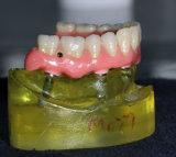 Por completo/dentadura parcial