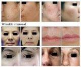 皮の若返りは取り外しの二酸化炭素レーザーの美装置を傷つける