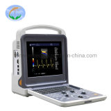 High Quilty Full-Digital color Doppler ultra-som Yj-U60plus)