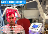 2017 최고 검토 650nm Laser 머리 재성장 장치