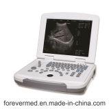 L'équipement médical portable Full-Digital échographe Yj-U500