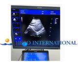 Couleur de l'échographie Doppelr Cw Echo (HP-UC900)