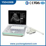 Banheira de venda de equipamento médico de novo modelo de scanner de ultra-som com tela grande