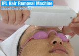 IPL multifunzionale e ND: Rimozione dei capelli del sistema del laser di YAG