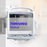 Scanner d'échographie-Doppler de couleur d'ordinateur portatif (THR-CD300)