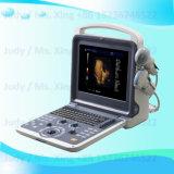 Портативные медицинские, утвержденном CE 4D цветового доплеровского ультразвукового сканера .