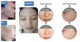 Ultima pelle 2017 che imbianca l'ossigeno dell'iniezione di Moisuture per la macchina facciale