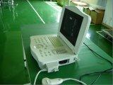 Scanner à ultrasons numérique complet pour ordinateur portable (THR-LT002)