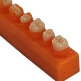 Ponticello di Zirconia di CAD/Cam fatto in laboratorio dentale