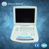 Medizinischer Voll-Digitaler Laptop-Ultraschall-Diagnosescanner