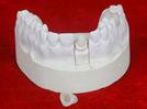 Customrized IPS E-Maximale Krone mit schöner Farbe als realen Zähnen