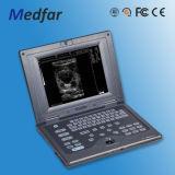 Vendita calda! Ultrasuono portatile di Doppler di colore di Medfar MFC2018V