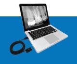Sensore dentale degli S.U.A. Rvg di alta qualità più poco costosa