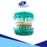 El uno mismo que liga los dientes ortodónticos de las paréntesis se endereza