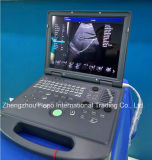 Portable 3D Color Doppler Hospital scanner de ultra-som do produto