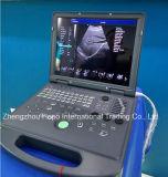 Портативный 3D цветового доплеровского ультразвукового сканера продукции медицинского учреждения