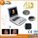 Équipement pour hôpitaux Appareil d'échographie portable DoDler 4D pour la grossesse