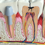 가르치는 사용 병리학적인 이 해부학 치과 치료 모형 (R080119)