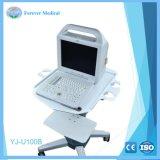 Диагностическое оборудование цифровых портативных ультразвукового сканера Yj-U100b