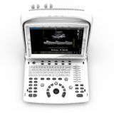 携帯用BlackかWhite Ultrasound Scanner (ECO3 EXPECT)