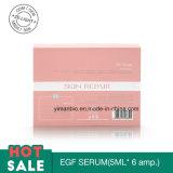 Soro de EGF para a mitigação da pele do reparo do tatuagem da acne que impede cicatrizes depois que o tratamento realça a imunidade da textura da pele boa para a pele danificada