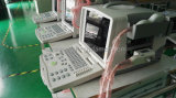 Sistema portatile approvato di ultrasuono di iso Digital del CE della FDA (YSD1300)