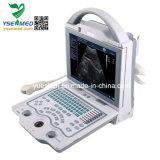Bw van de lage Prijs de Digitale Laptop Scanner van de Machine van de Ultrasone klank van de Machine van de Ultrasone klank
