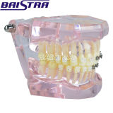 Modelo dental certificado Ce dos dentes do meio ensino cerâmico do metal meio