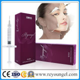 Reyoungel OEM Cross-Linked Ha remplissage dermique injectable