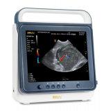 PT50A fournitures de santé à domicile Sonosite ultrasons